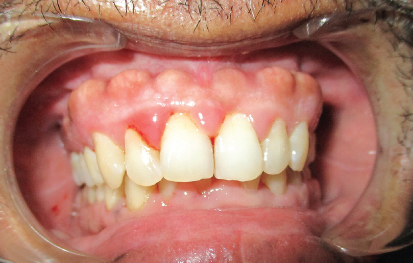 Bilateral buccal exostosis evaluated by cone-beam computed