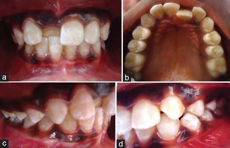 A fixed partial appliance approach towards treatment of
