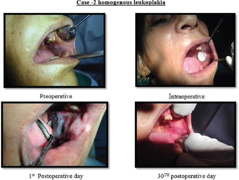 Cryosurgery for the treatment of oral leukoplakia