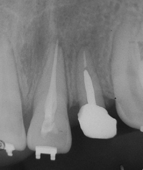Management of lateral incisor fractured at crestal level: An