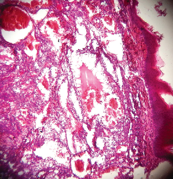 Figure 3: Photomicrograph showing numerous endothelium-lined, large, dilated blood sinuses beneath the keratinized stratified squamous epithelium (H and E, ×10)