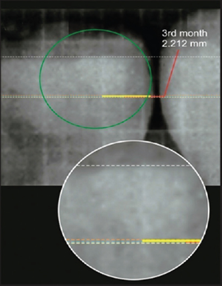 Figure 6: IOPAR-Reading with Dycal at 3 months